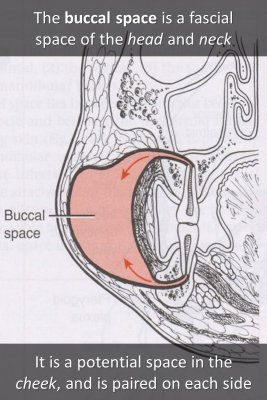 Buccal space knowledge cards